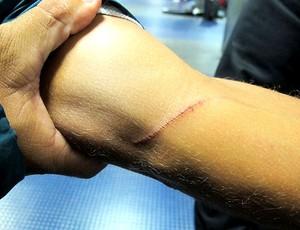 ferimento após confusão na partida do Fluminense contra o Argentinos Juniors (Foto: Edgard Maciel de Sá / GLOBOESPORTE.COM)