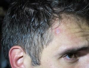 fernando prass vasco x coritiba ferido (Foto: Gustavo Rotstein/Globoesporte.com)