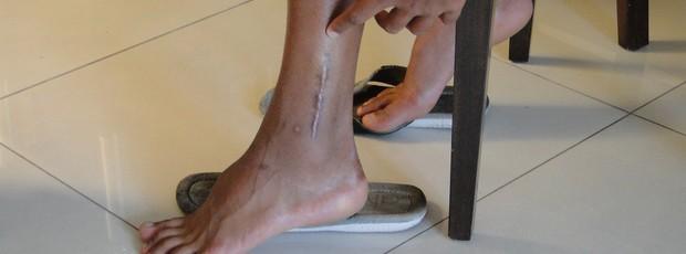 Wallyson, atacante do Cruzeiro, mostra cicatriz da cirurgia (Foto: Ana Paula Moreira / Globoesporte.com)