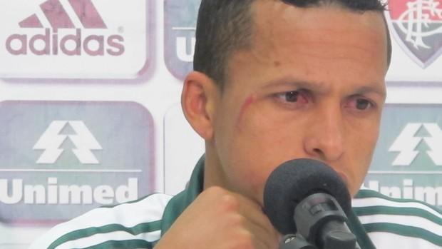 souza fluminense machucado rosto (Foto: Edgard Maciel de Sá / Globoesporte.com)