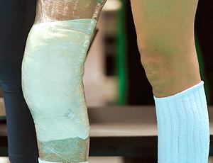 joelho machucado da Mari na partida de vôlei do Brasil contra Polônia