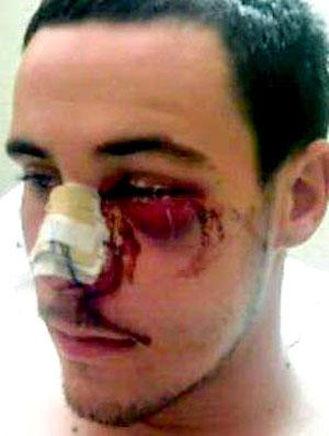 Jens Grahl, goleiro do Hoffenheim, após cirurgia no nariz