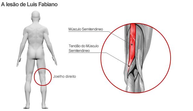 info contusão luis fabiano (Foto: arte esporte)