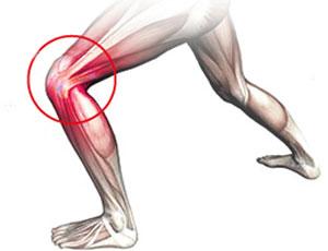 Dor na lateral do joelho saiba como reconhecer tratar e for Exercicio para interno de coxa