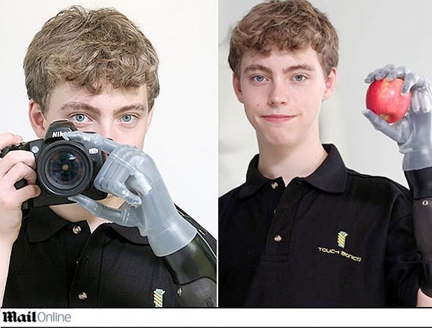JOVEM Matthew James ganhou mão mecânica de Ross Brawn (Foto: Reprodução Daily Mail)