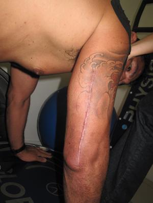 Minotauro fisioterapia (Foto: Ivan Raupp/Globoesporte.com)