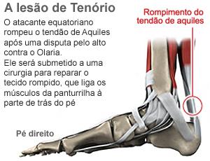 info lesão tendão de aquiles (Foto: arte Esporte)