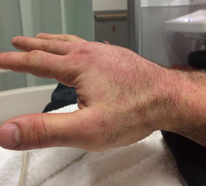 Depois de perder para Stipe Miocic, Napão posta foto da mão quebrada