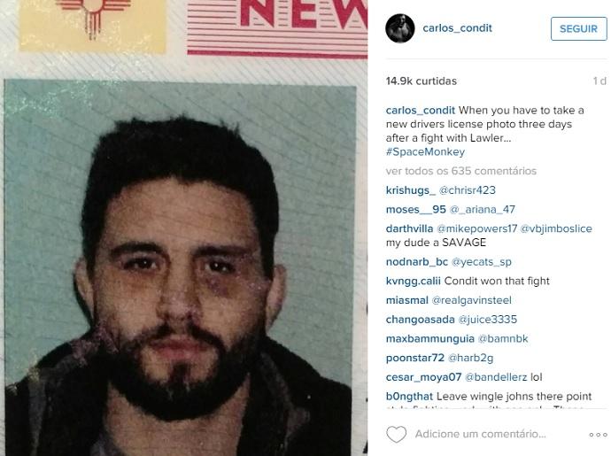 BLOG: Carlos Condit renova carteira de motorista e mostra hematomas de luta contra Lawler
