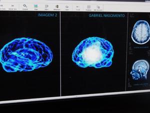 Exame de Gabriel mostra dois cérebros. Um muito mais luminoso do que o outro (Foto: Malhação / TV Globo)