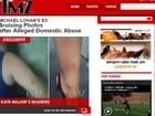 Site divulga fotos da ex do pai de Lindsay Lohan após agressão