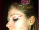 Depois de briga, site mostra Avril Lavigne com o rosto todo machucado