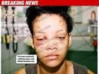 Duas policiais são suspeitas de divulgar fotos de Rihanna machucada