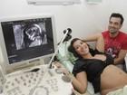 É menino! Priscila Pires comemora sexo do primeiro filho após exame