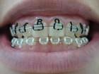 Perlla coloca nome da filha no aparelho dentário para passar réveillon