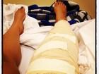Preta Gil volta aos palcos no dia 1º de maio após cirurgia no joelho