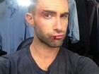 Adam Levine aparece com o lábio sangrando em gravação de clipe