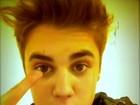 Justin Bieber não consegue mexer sobrancelha após bater a cabeça