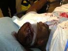 Briga entre Chris Brown e rapper em boate tem mais feridos