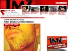 Chris Brown fere o queixo em briga com ex-affair de Rihanna, diz site