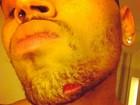 Chris Brown e Drake não serão indiciados por briga, diz site