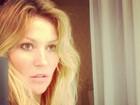 Ellen Jabour posta foto depois do acidente: 'Me sentindo bem melhor'