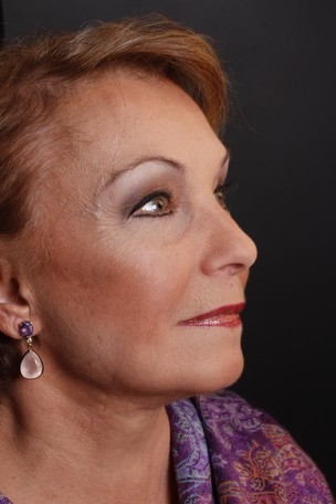 Norma Blum (Foto: Divulgação)