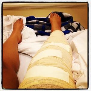 Preta Gil com o joelho operado (Foto: Reprodução/Twitter)