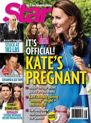 Kate Middleton (Foto: Star Magazine/ Reprodução)