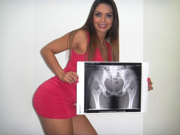 Gracielle Carvalho - Miss Bum Bum (Foto: Divulgação)