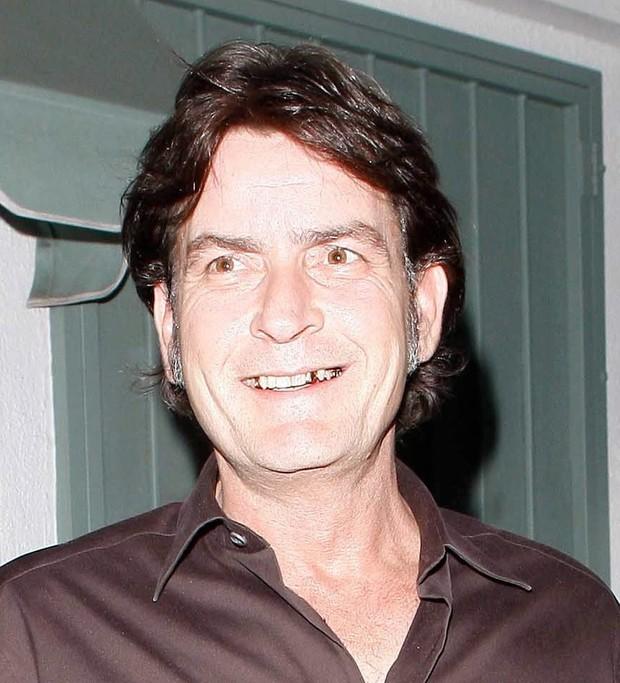 Charlie Sheen exibe dentes de ouro em Los Angeles, nos Estados Unidos - X17 (Foto: X17/ Agência)