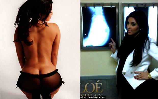 Rainha do bumbum nos EUA, Kim Kardashian teve de fazer raio-x para mosrtrar que não tinha silicone
