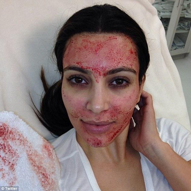 No início deste ano, Kim Kardashian quis mostrar seu novo tratamento estético que consistia em aplicar seu próprio sangue no rosto. Mas a noiva de Kanye West acabou assustando os seguidores de uma rede social com o rosto todo ensaguentado