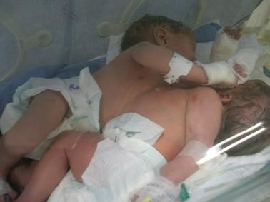 Gêmeas siamesas no hospita em Timóteo (Foto: Divulgação)