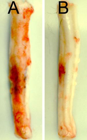 Medula espinhal de ratos 24 horas após ferimento cervical: a cobaia B recebeu tratamento para silenciar o gene Abcc8, com uma notável redução de hemorragia (Foto: Cortesia de J. Marc Simard / Science Translational Medicine)