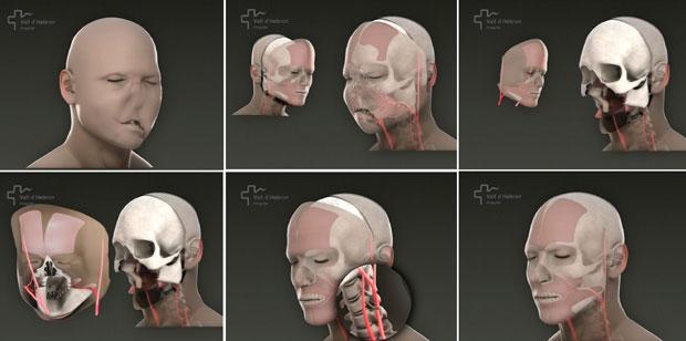 Apresentação do Hospital Vall d'Hebron, em Barcelona, detalha  etapas da cirurgia, que demorou 22 horas