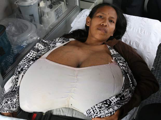 Julia Manihuari, de 29 anos, viu seus peitos crescerem depois de ter o terceiro filho.