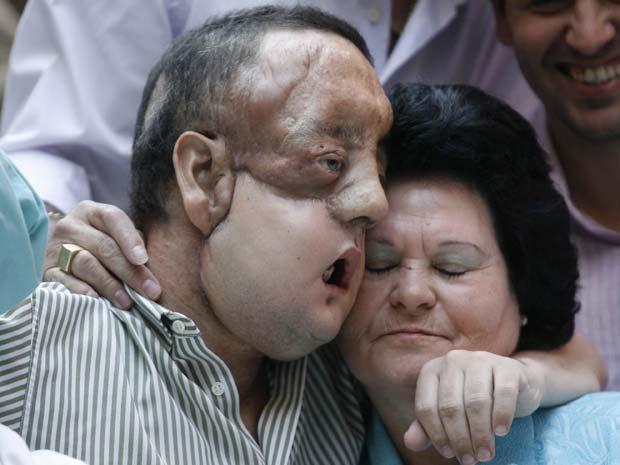 transplante de rosto em Sevilha