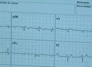 Frequência cardíaca será avaliada (Foto: TV Globo/Reprodução)