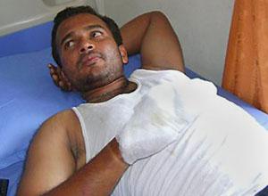 G. K. Pradeep escapou com ferimentos leves
