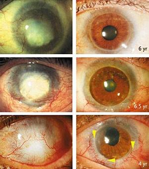 Montagem mostra olhos de três pacientes antes e depois do  tratamento com células-tronco.