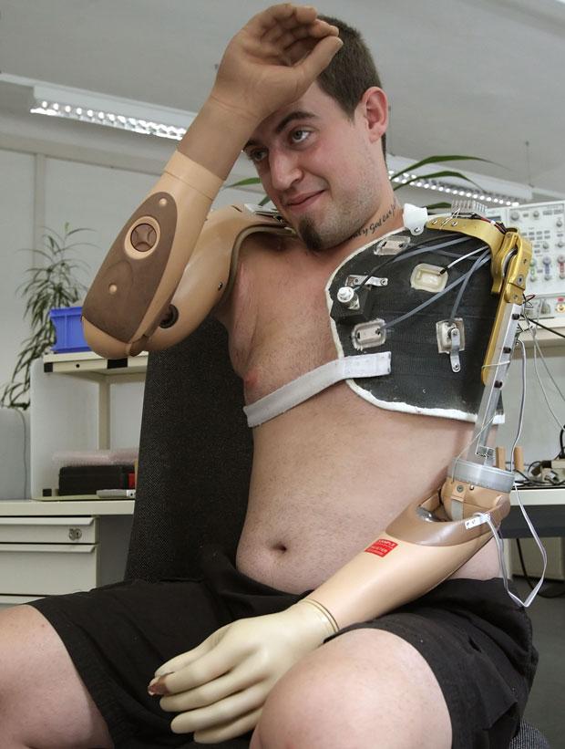 Christian Kandlbauer, de 22 anos, perdeu os dois braços em 2005