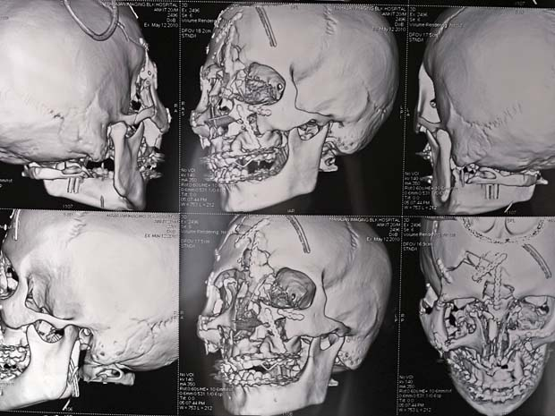 Os médicos precisaram de 12 horas para realizar uma cirurgia no cérebro de Hooda, com reconstrução de membranas e de ossos do crânio e da face do paciente