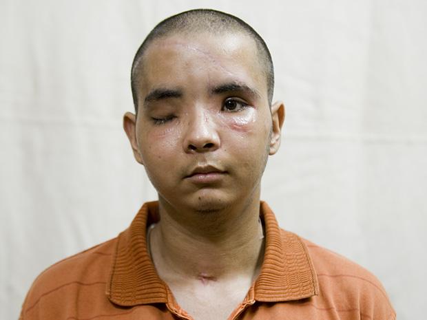 Ankit Hooda sofreu mais de 100 fraturas no rosto após ser atingido por um caminhão enquanto andava de moto em Nova Délhi, na Índia.