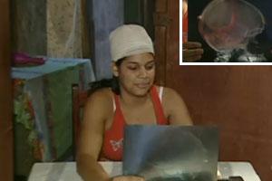 Três meses depois, mulher tem bala retirada da cabeça no DF (Reprodução/TV Globo)