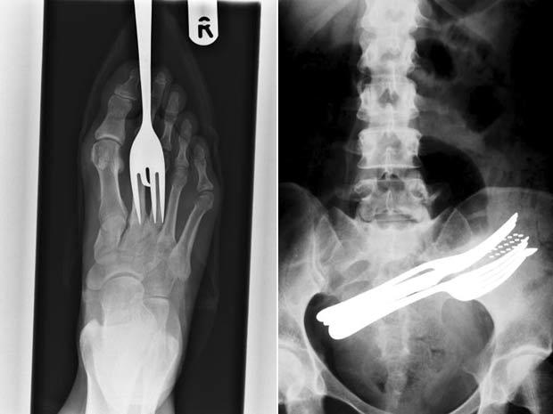 À esquerda, raio-X mostra garfo ficando em pé de paciente. À direita, imagem do abdômen mostra dois garfos, uma esferográfica e uma escova de dentes que foram engolidas por um paciente.