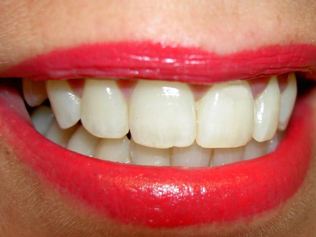 Células-tronco serão cultivadas em laboratório da USP a partir de vários tecidos dentais