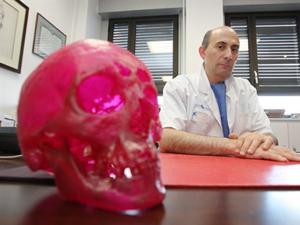 O cirurgião francês Lantieri, recordista de operações de transplante de face no mundo.