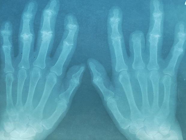 Consumo frequente de álcool pode reduzir em até 4 vezes o risco de desenvolver artrite reumatoide, segundo aponta pesquisa realizada pela Universidade de Sheffield.