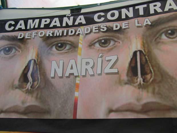 Campanhas publicitárias na Bolívia estimulam cirurgia plástica